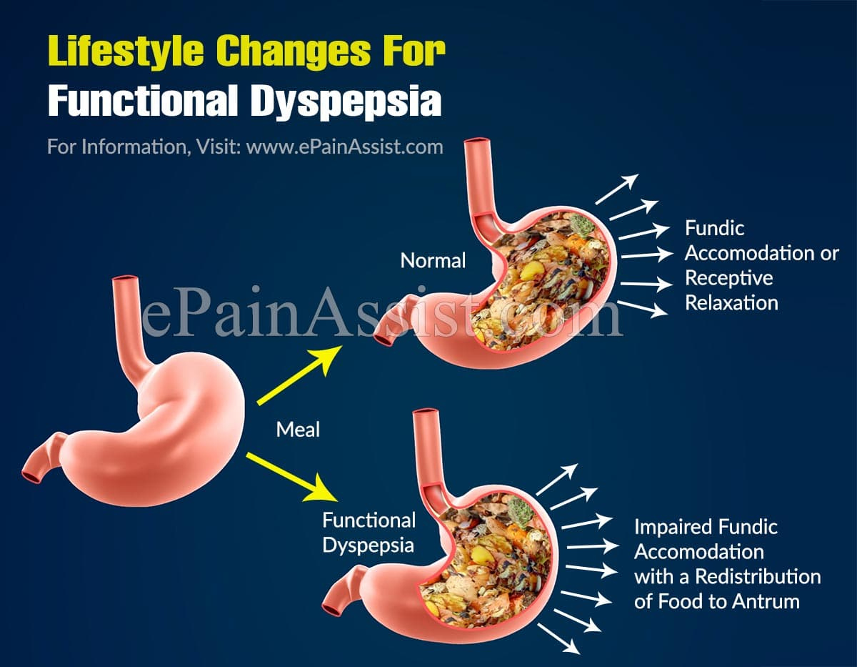 Lifestyle Changes For Functional Dyspepsia