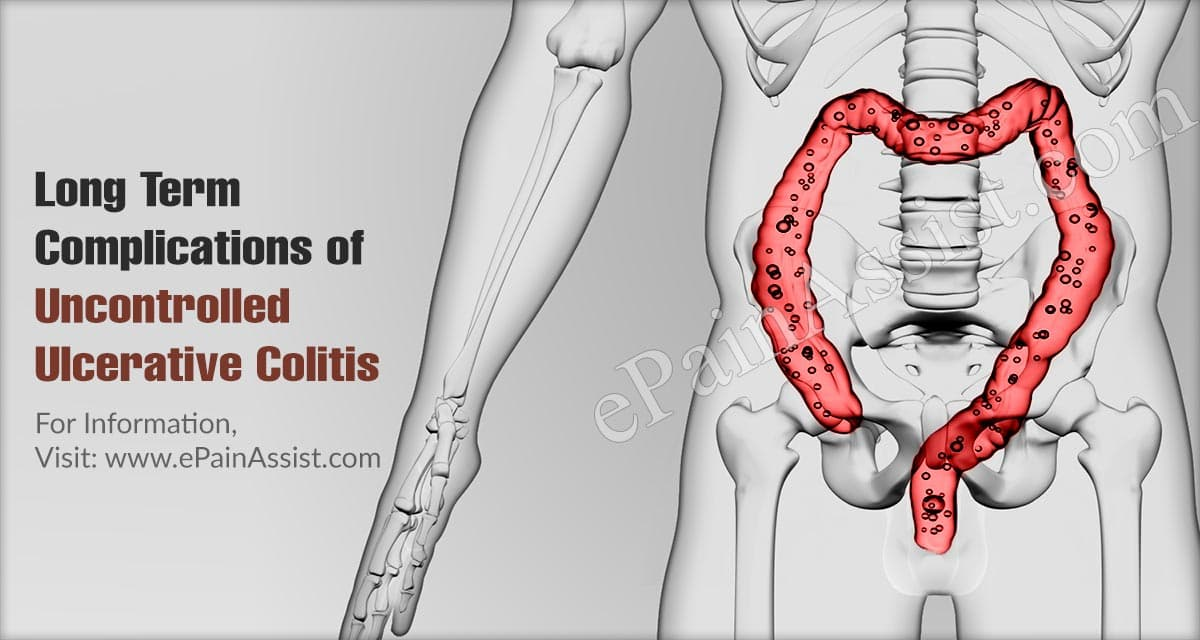 Long Term Complications of Uncontrolled Ulcerative Colitis