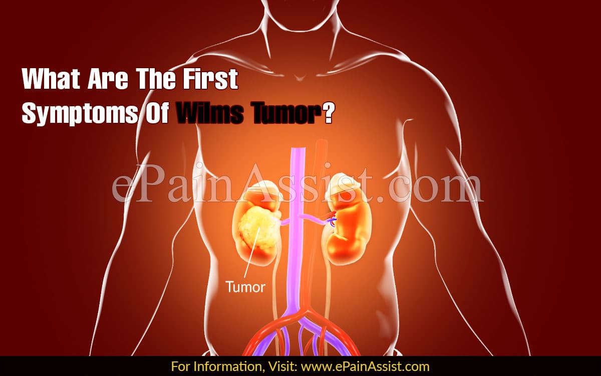 What Are The First Symptoms Of Wilms Tumor?