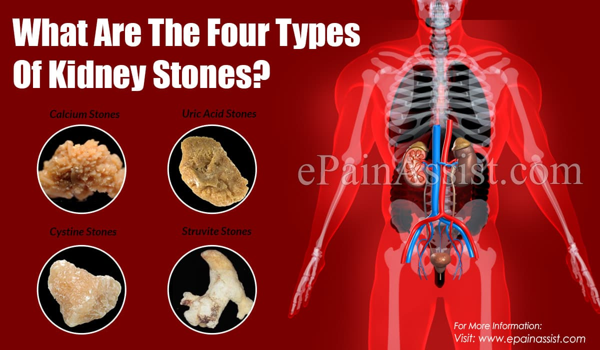 What Are The Four Types Of Kidney Stones?