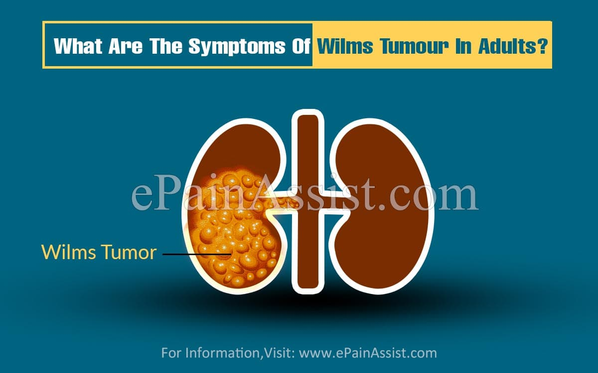 What Are The Symptoms Of Wilms Tumour In Adults?
