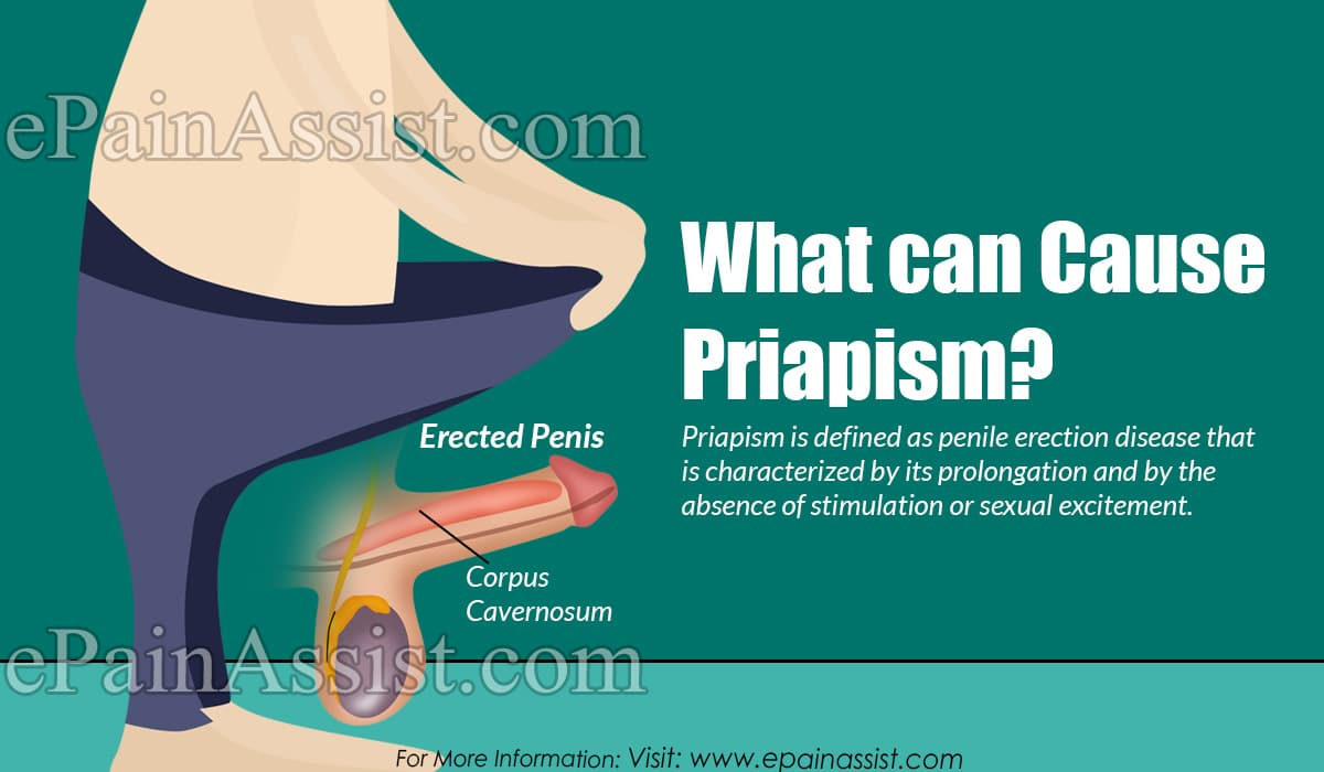 What can Cause Priapism?