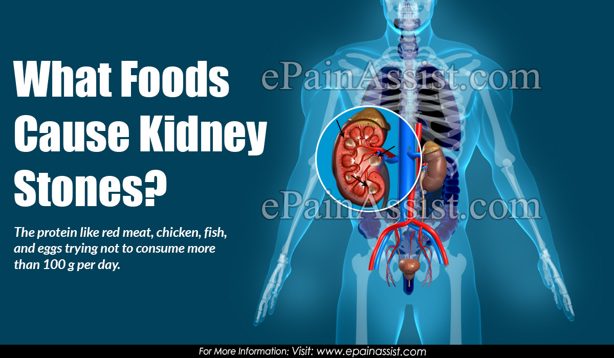 What Foods Cause Kidney Stones?