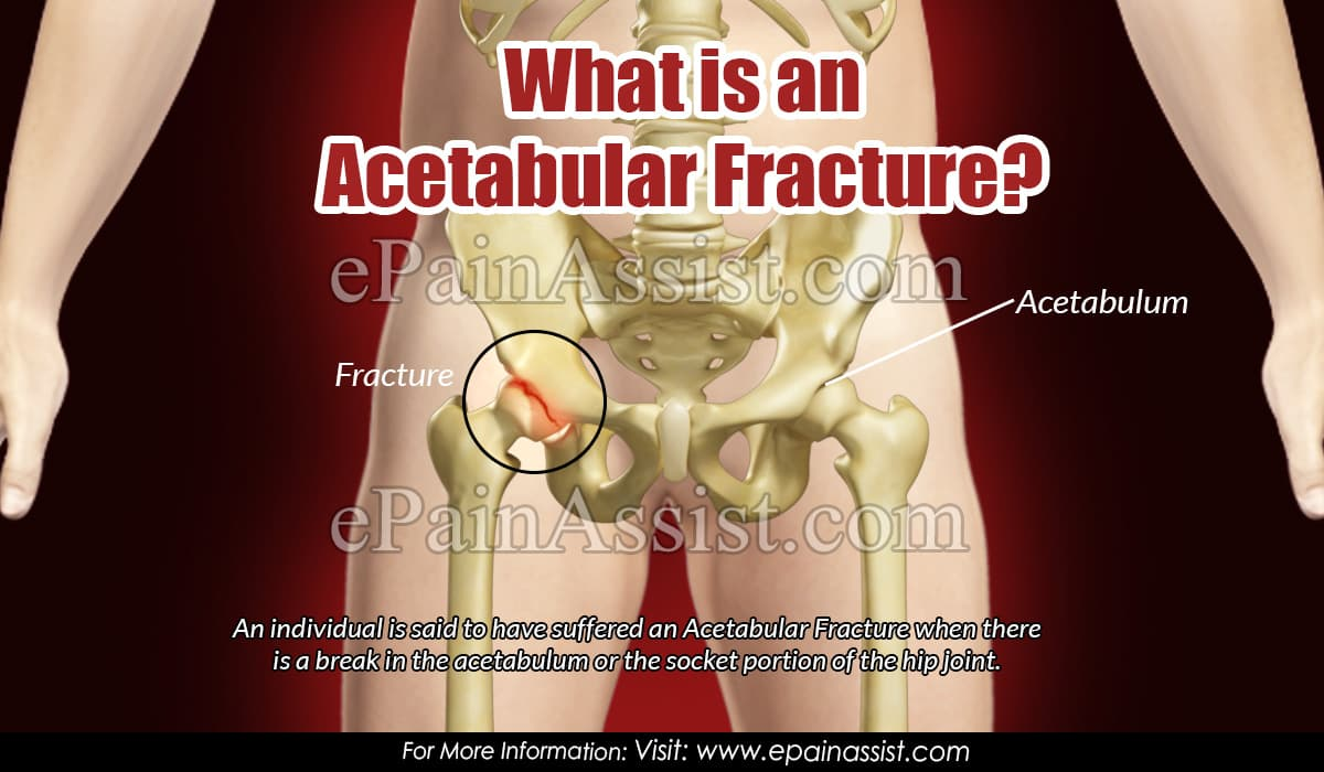What is an Acetabular Fracture?