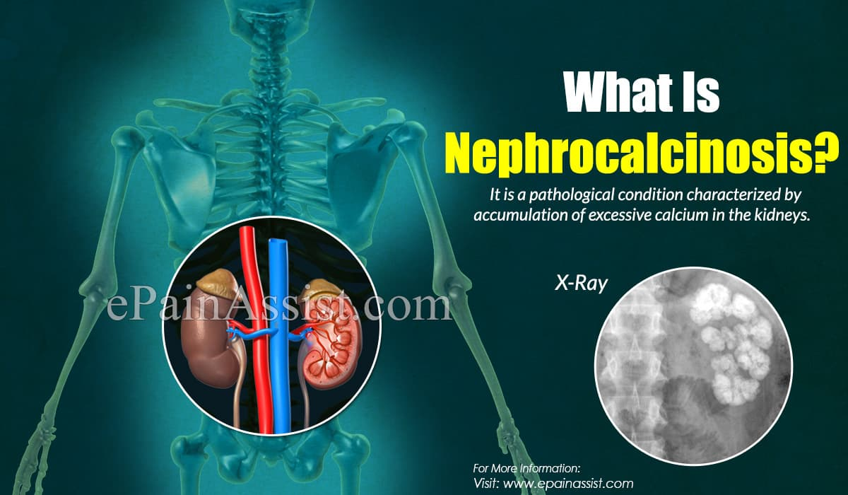 What Is Nephrocalcinosis?