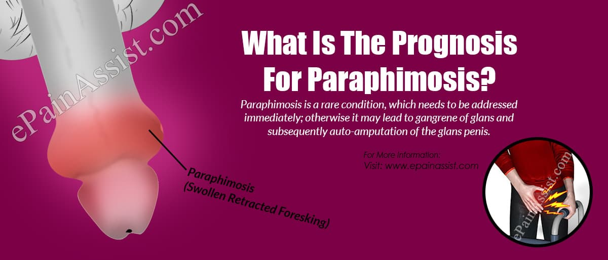 What Is The Prognosis For Paraphimosis?