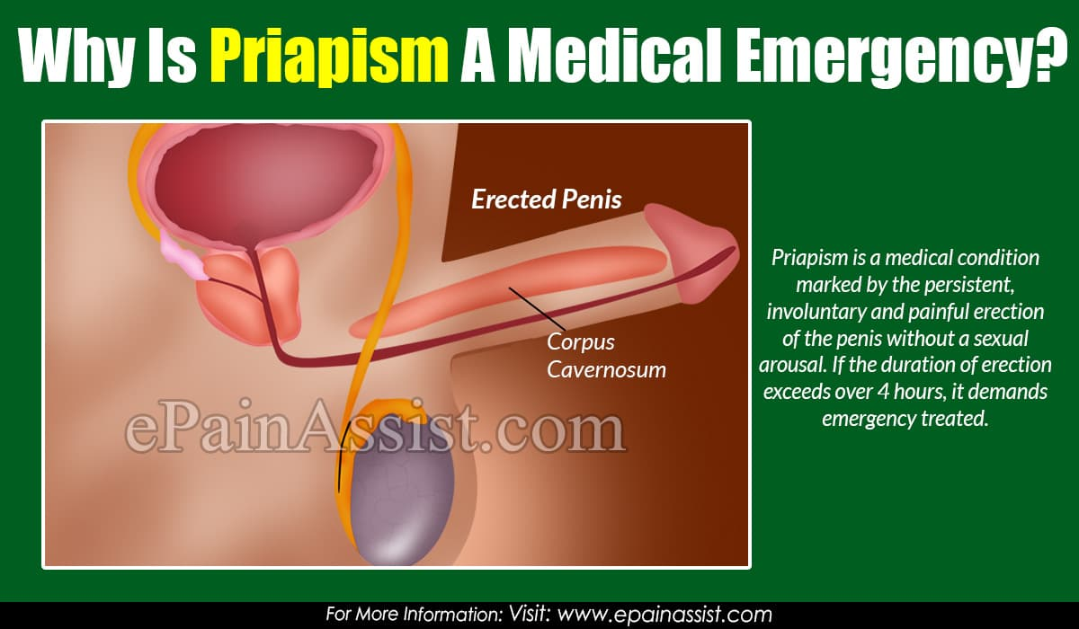 Why Is Priapism A Medical Emergency?