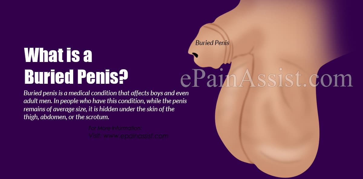 What is a Buried Penis?