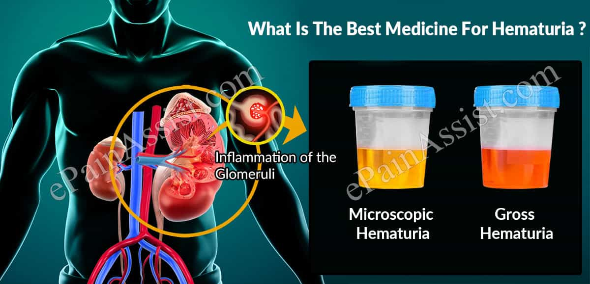 What Is The Best Medicine For Hematuria?