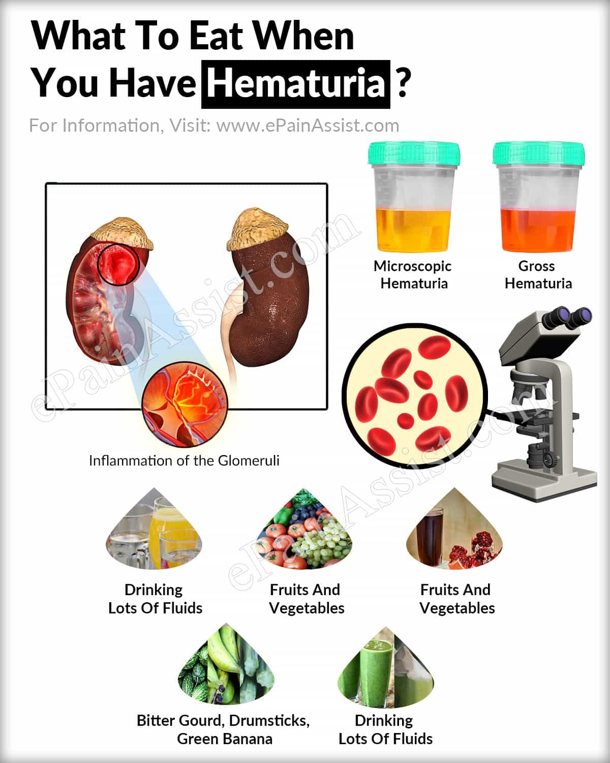 What To Eat When You Have Hematuria?