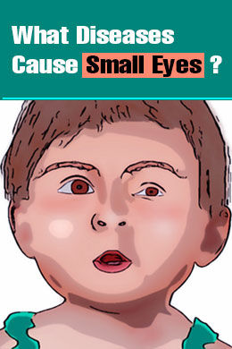 What Diseases Cause Small Eyes