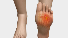 Foot Pain Pictures