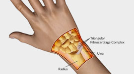Wrist Pain Pictures