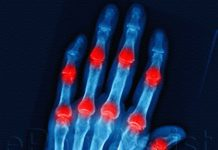 What is Arthritis (Joint Inflammation)?