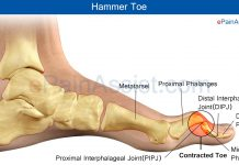 Hammer Toe or Contracted Toe