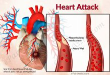 Heart Attack or Myocardial Infarction (MI)