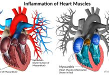 Myocarditis or Inflammation of Heart Muscles