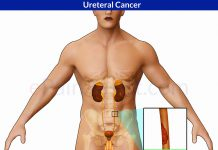 Ureteral Cancer or Ureter Cancer or Renal Pelvis Cancer