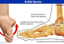 Sprained Ankle or Twisted Ankle