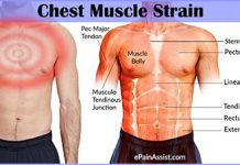 Chest Muscle Strain