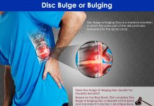 Can Disc Bulge Qualify For Disability Benefits?