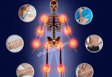 Joint Pain and Fatigue – What Could be the Possibilities?