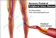 Recovery Period of Peripheral Artery Disease & its Prognosis