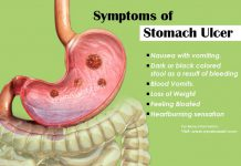 Stomach Ulcer or Peptic Ulcer Disease
