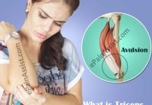What is Triceps Tendon Avulsion