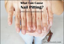 What Can Cause Nail Pitting or Pitted Nails?