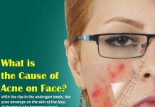 What is the Cause of Acne on Face?