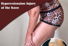 What is Hyperextension Injury of the Knee & How is it Treated?