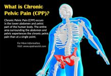 What Can Cause Chronic Pelvic Pain, Know its Symptoms, Pathophysiology, Epidmiology