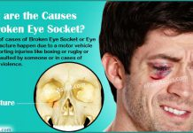 What Can Cause Broken Eye Socket or Eye Socket Fracture & How is it Treated?
