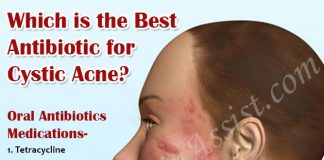Which Is The Best Antibiotic For Cystic Acne