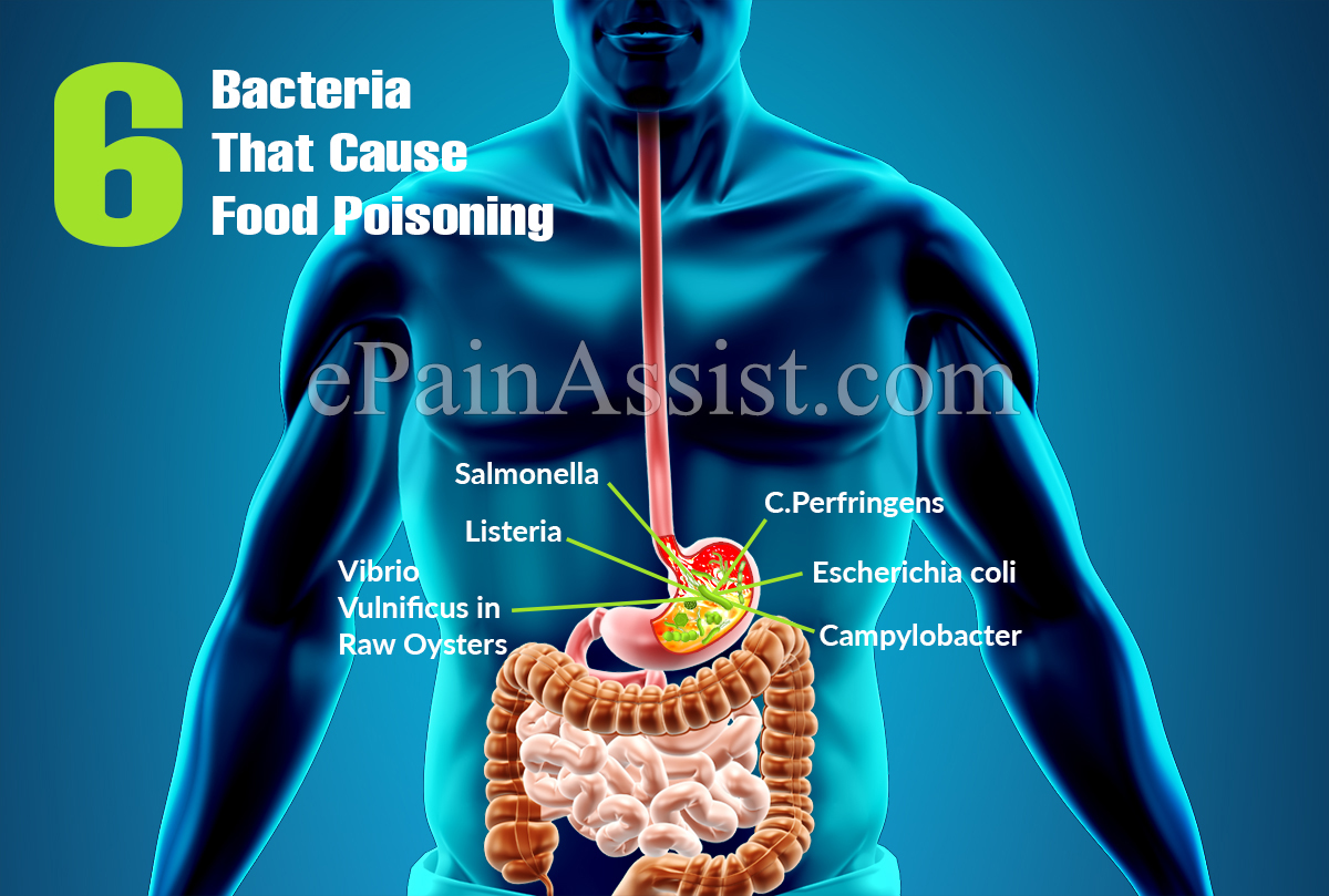 6 Bacteria That Cause Food Poisoning
