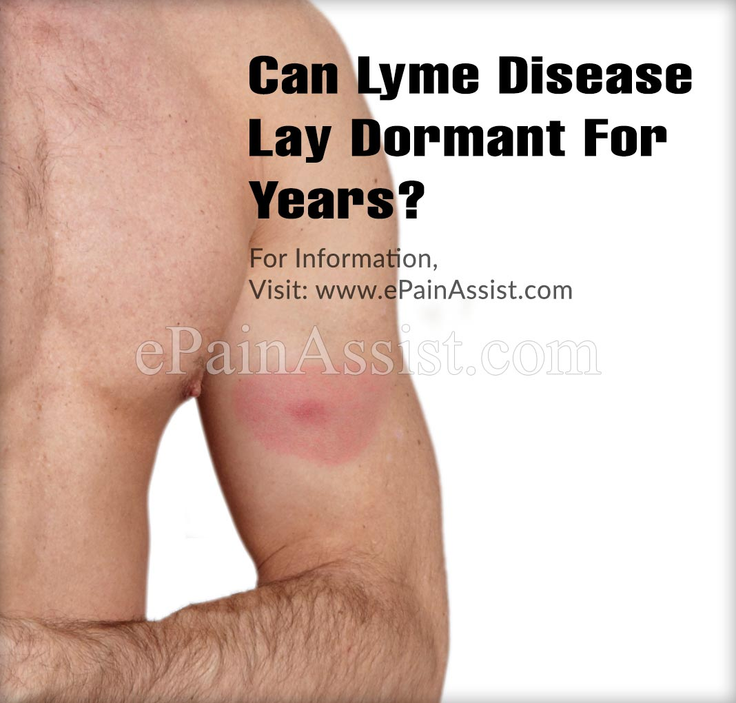 Can Lyme Disease Lay Dormant For Years?