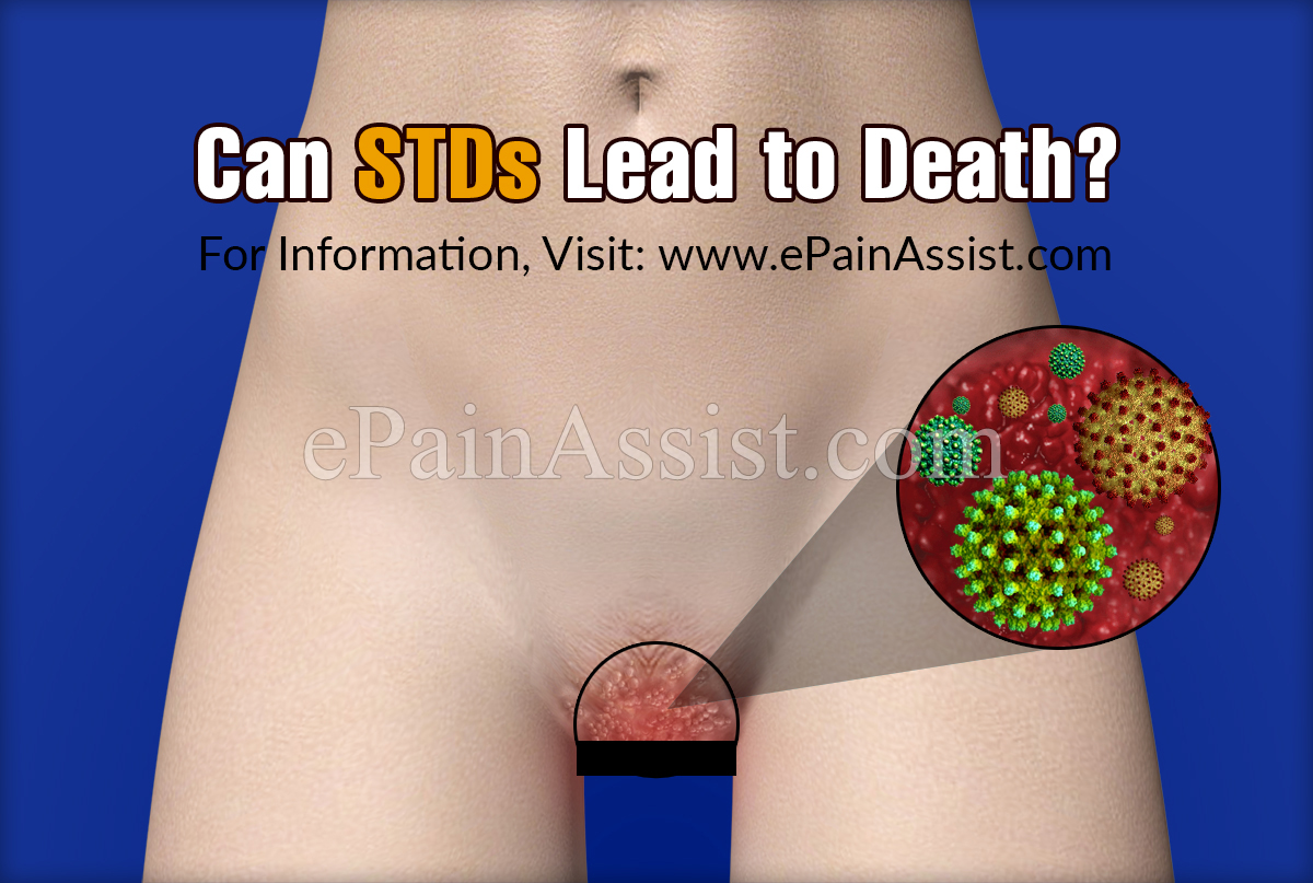 Can STDs Lead to Death?