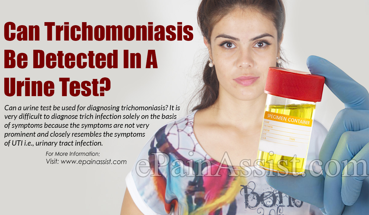 Can Trichomoniasis Be Detected In A Urine Test?