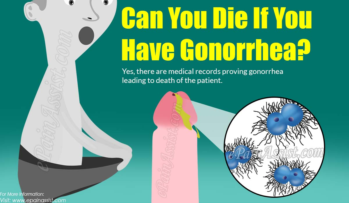 Can You Die If You Have Gonorrhea?