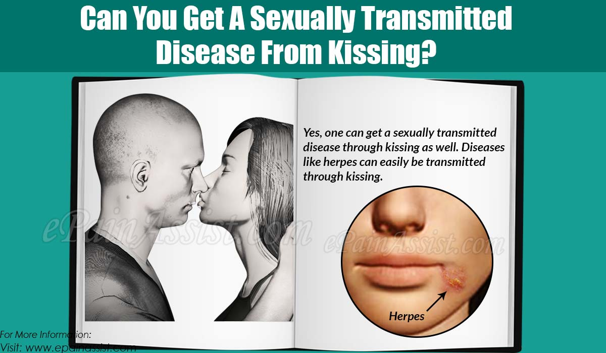 Can You Get A Sexually Transmitted Disease From Kissing?