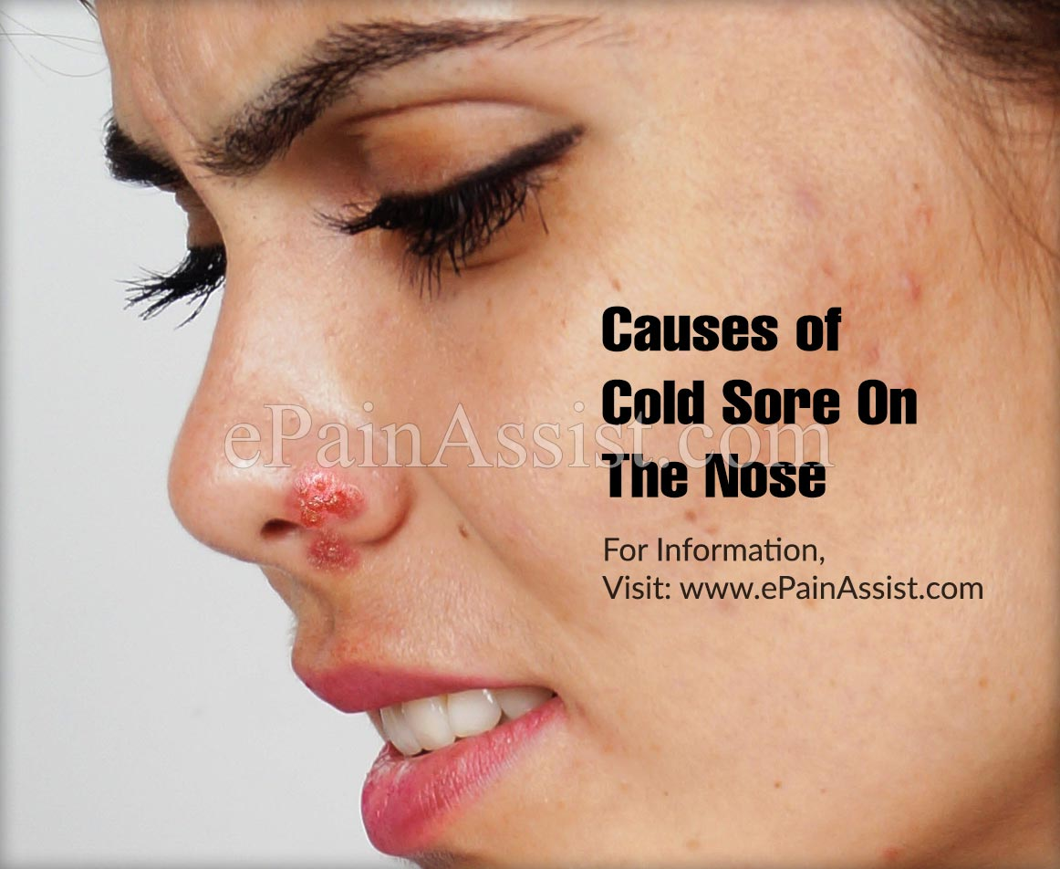 Causes of Cold Sore on the Nose