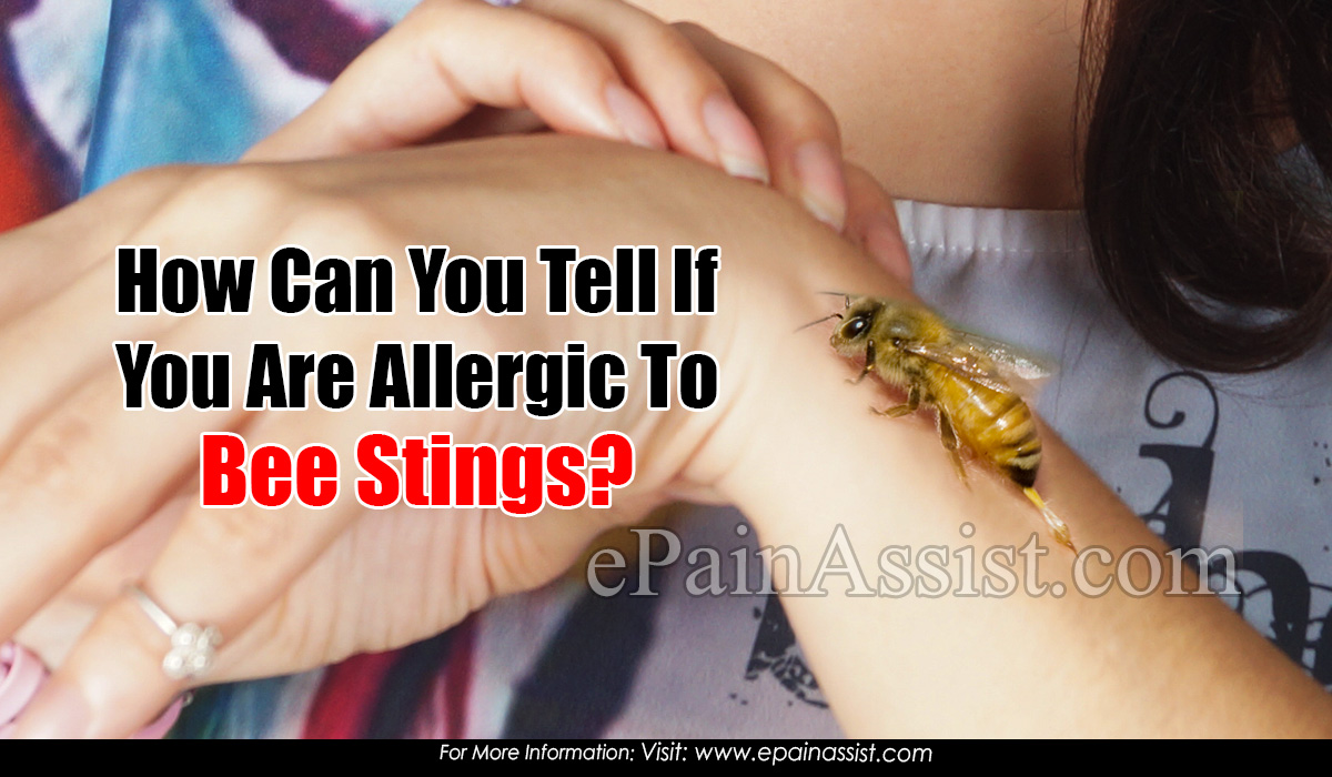 How Can You Tell If You Are Allergic To Bee Stings?