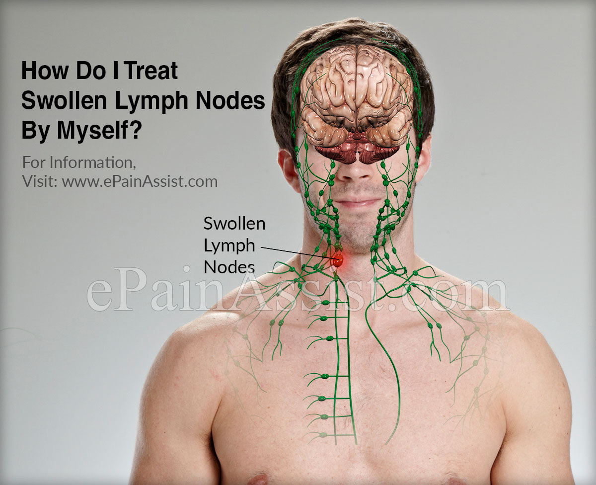 How Do I Treat Swollen Lymph Nodes By Myself?