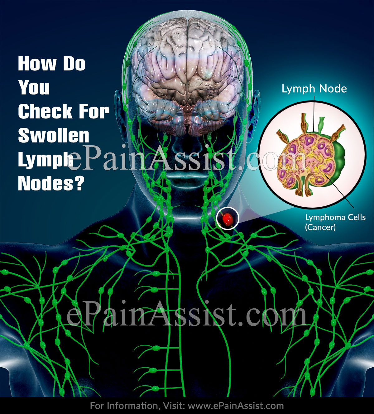 How Do You Check For Swollen Lymph Nodes?
