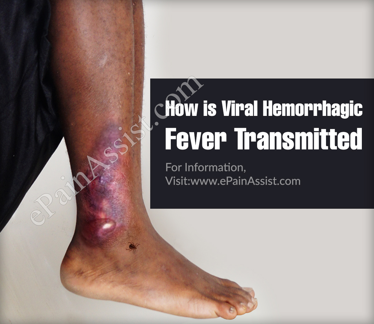 How is Viral Hemorrhagic Fever Transmitted?
