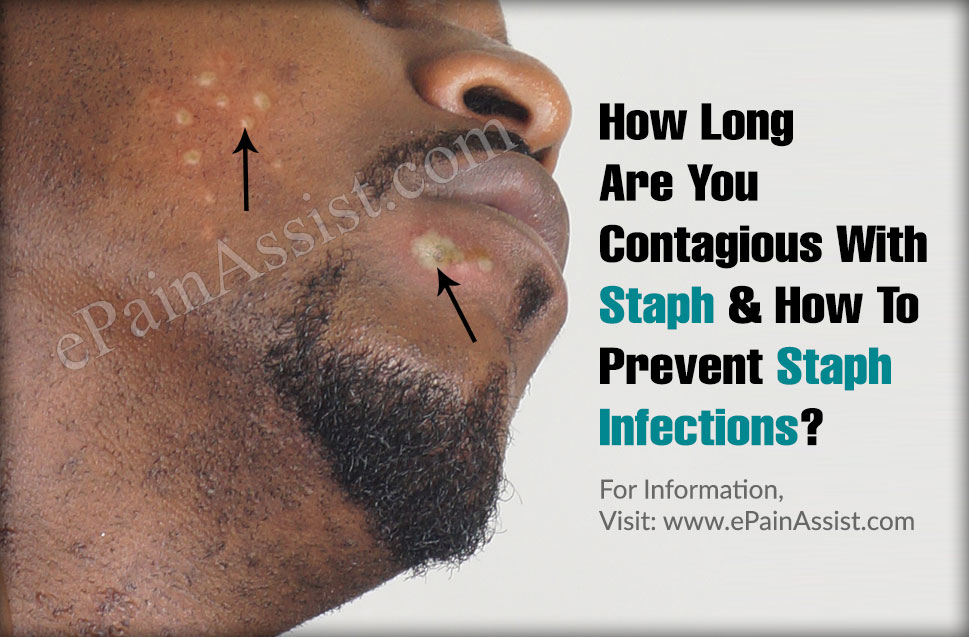 How Long Are You Contagious With Staph & How To Prevent Staph Infections?