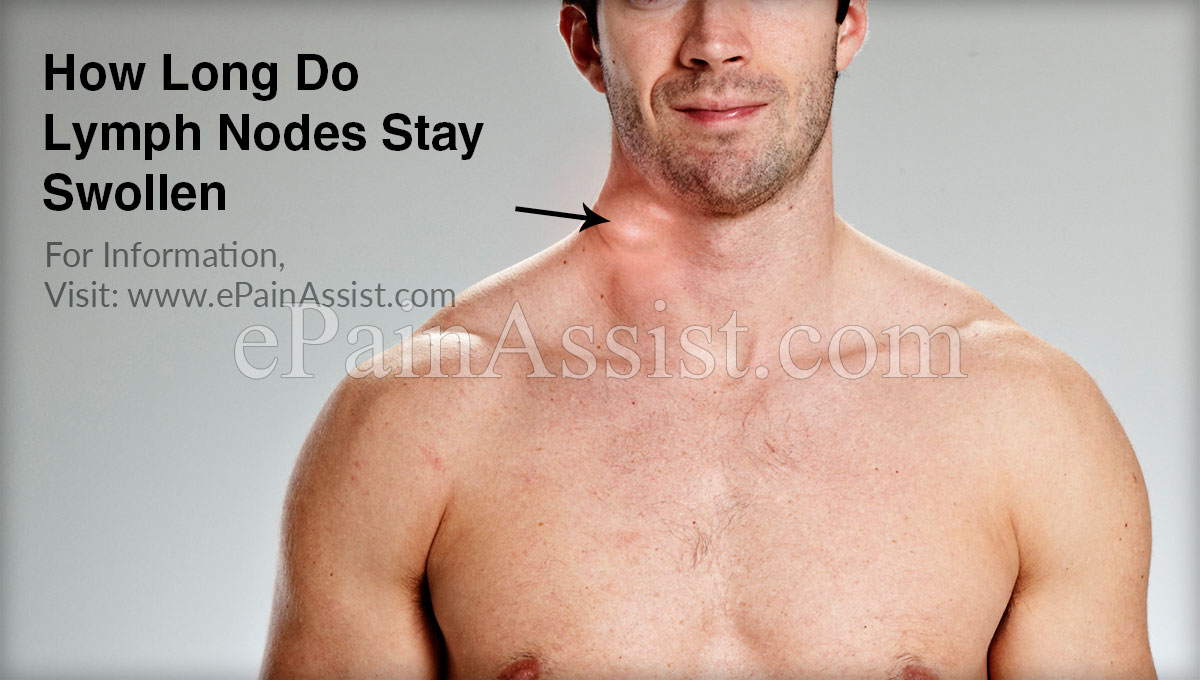 How Long Do Lymph Nodes Stay Swollen?