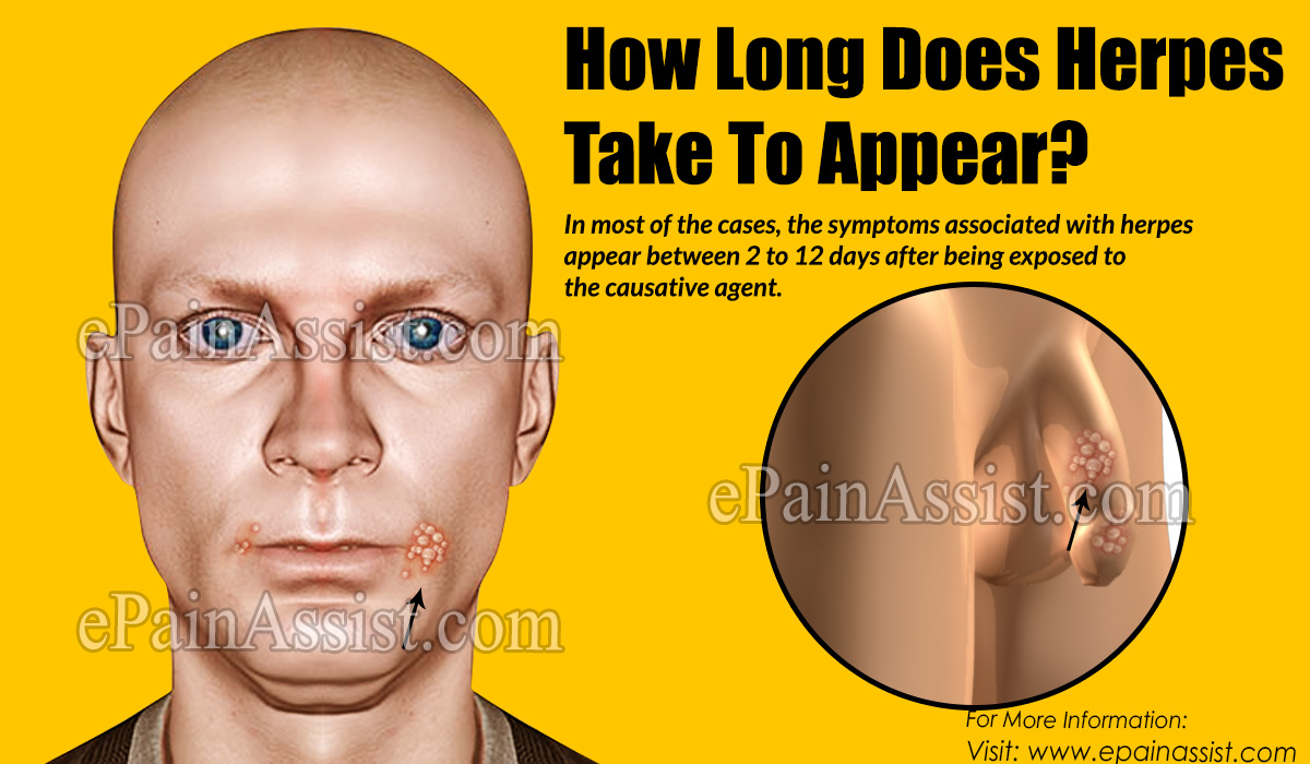 How Long Does Herpes Take To Appear?