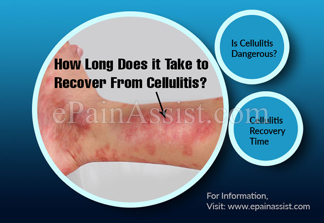 How Long Does it Take to Recover From Cellulitis?